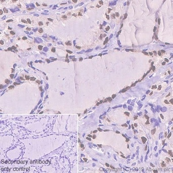 Immunohistochemistry (Formalin/PFA-fixed paraffin-embedded sections) - Anti-PAX8 antibody [EPR13511] - C-terminal (ab189249)
