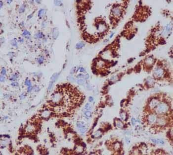 Immunohistochemistry (Formalin/PFA-fixed paraffin-embedded sections) - Anti-ECH1 antibody [EPR15449(B)] - C-terminal (ab189255)