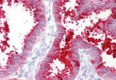 Immunohistochemistry (Formalin/PFA-fixed paraffin-embedded sections) - Anti-MMP7 antibody - C-terminal (ab189277)