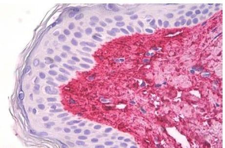 Immunohistochemistry (Formalin/PFA-fixed paraffin-embedded sections) - Anti-COL5A1 antibody (ab189285)