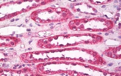 Immunohistochemistry (Formalin/PFA-fixed paraffin-embedded sections) - Anti-Aquaporin 1 antibody - N-terminal (ab189291)