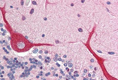 Immunohistochemistry (Formalin/PFA-fixed paraffin-embedded sections) - Anti-IL-23 antibody - N-terminal (ab189300)