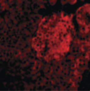 Immunocytochemistry/ Immunofluorescence - Anti-IL-23 antibody - N-terminal (ab189300)