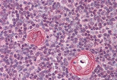 Immunohistochemistry (Formalin/PFA-fixed paraffin-embedded sections) - Anti-MAVS antibody - N-terminal (ab189303)
