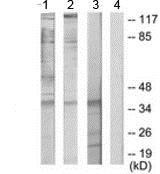 Western blot - Anti-ATF1 antibody (ab189311)