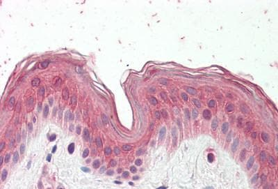 Immunohistochemistry (Formalin/PFA-fixed paraffin-embedded sections) - Anti-CYP24A1 antibody (ab189322)