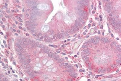Immunohistochemistry (Formalin/PFA-fixed paraffin-embedded sections) - Anti-TIL/TLR1 antibody (ab189337)