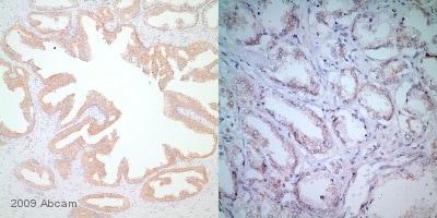 Immunohistochemistry (Formalin/PFA-fixed paraffin-embedded sections) - Anti-BRAF antibody [EP152Y] - BSA and Azide free (ab189351)