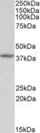 Western blot - Anti-Decorin antibody (ab189364)