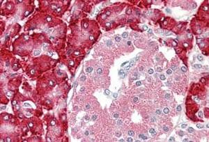 Immunohistochemistry (Formalin/PFA-fixed paraffin-embedded sections) - Anti-PDI antibody (ab189368)