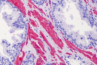 Immunohistochemistry (Formalin/PFA-fixed paraffin-embedded sections) - Anti-ACTG2 antibody - N-terminal (ab189385)
