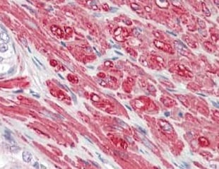 Immunohistochemistry (Formalin/PFA-fixed paraffin-embedded sections) - Anti-PRDC antibody - C-terminal (ab189387)