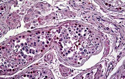 Immunohistochemistry (Formalin/PFA-fixed paraffin-embedded sections) - Anti-Orexin Receptor 2 antibody (ab189393)