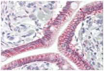 Immunohistochemistry (Formalin/PFA-fixed paraffin-embedded sections) - Anti-GPCR GPR52 antibody - N-terminal (ab189404)