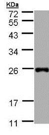 Western blot - Anti-Tbx1 antibody (ab189415)