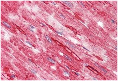 Immunohistochemistry (Formalin/PFA-fixed paraffin-embedded sections) - Anti-TTYH2 antibody - N-terminal (ab189421)