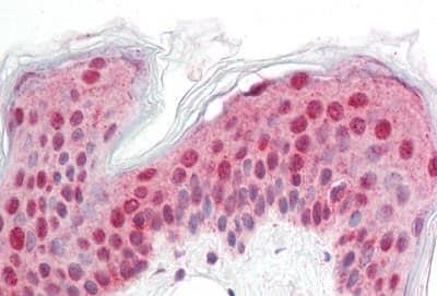 Immunohistochemistry (Formalin/PFA-fixed paraffin-embedded sections) - Anti-L2 antibody (ab189424)
