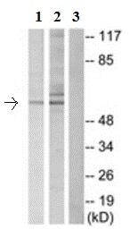 Western blot - Anti-Dab1 antibody (ab189426)