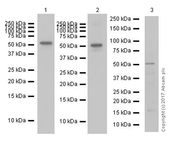 Western blot - Anti-Fibrinogen antibody [EPR18145-84] (ab189490)