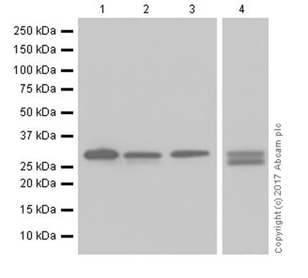 Western blot - Anti-Heme Oxygenase 1 antibody [EPR18161-128] (ab189491)