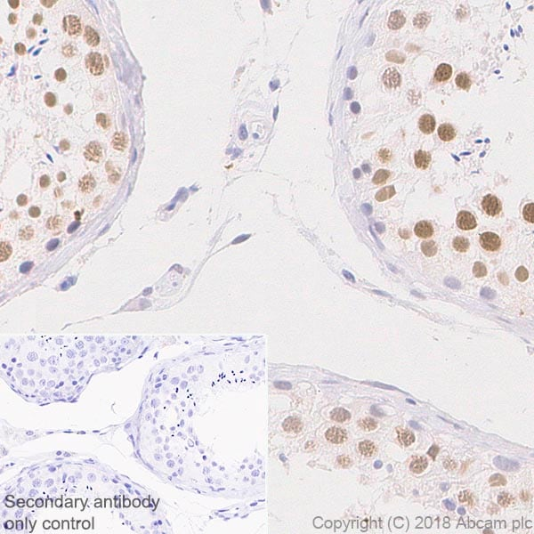 Immunohistochemistry (Formalin/PFA-fixed paraffin-embedded sections) - Anti-SIRT1 antibody [EPR18239] (ab189494)