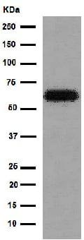 Western blot - Anti-HAI-1 antibody [EPR15652] (ab189511)