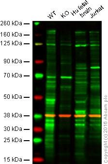 Western blot - Anti-USP19 antibody [EPR14816] (ab189518)