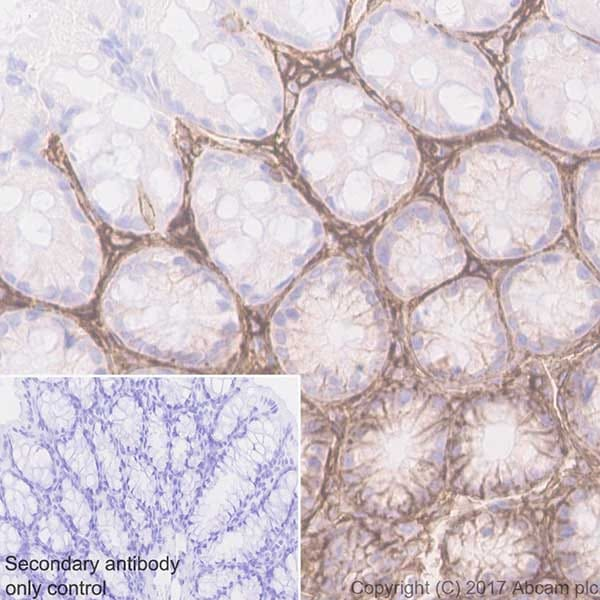 Immunohistochemistry (Formalin/PFA-fixed paraffin-embedded sections) - Anti-CD44 antibody [EPR18668] (ab189524)