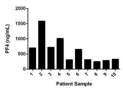 Quantitation of PF4 expression in Normal Human Serum from individual donors.