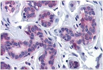 Immunohistochemistry (Formalin/PFA-fixed paraffin-embedded sections) - Anti-AKT3 antibody (ab189643)