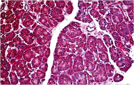 Immunohistochemistry (Formalin/PFA-fixed paraffin-embedded sections) - Anti-DR5 antibody - C-terminal (ab189645)