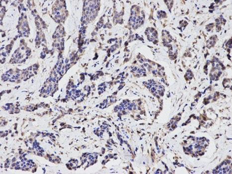 Immunohistochemistry (Formalin/PFA-fixed paraffin-embedded sections) - Anti-TGFBI antibody (ab189778)