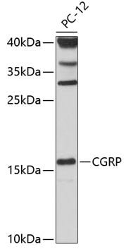 Western blot - Anti-CGRP antibody (ab189786)