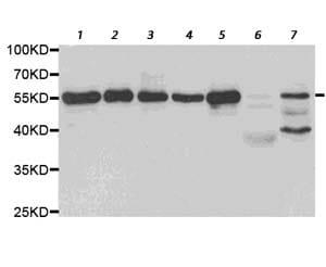 Western blot - Anti-Pea3 antibody (ab189826)