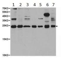Western blot - Anti-PGRMC1 antibody - C-terminal (ab189848)