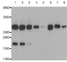 Western blot - Anti-Proteasome 20S alpha 5/PSMA5 antibody (ab189855)