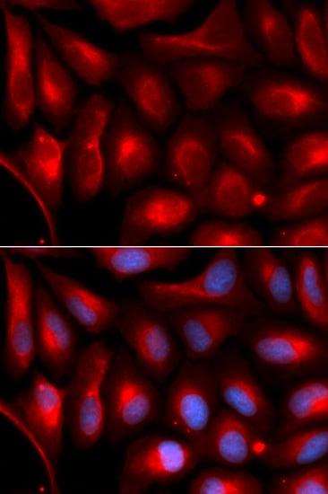 Immunocytochemistry/ Immunofluorescence - Anti-Proteasome 20S alpha 5/PSMA5 antibody (ab189855)