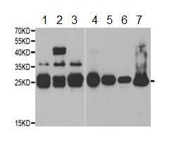 Western blot - Anti-QDPR antibody (ab189859)