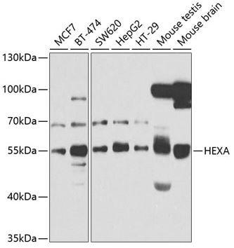 Western blot - Anti-HEXA antibody - C-terminal (ab189865)