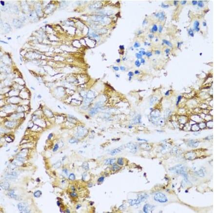 Immunohistochemistry (Formalin/PFA-fixed paraffin-embedded sections) - Anti-Apolipoprotein CI/Apo-CI antibody (ab189866)