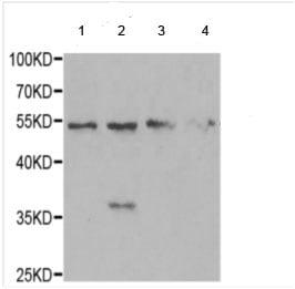 Western blot - Anti-MRPS30 antibody - C-terminal (ab189872)
