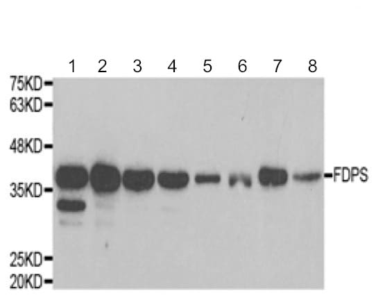 Western blot - Anti-FDPS/FPS antibody - C-terminal (ab189874)