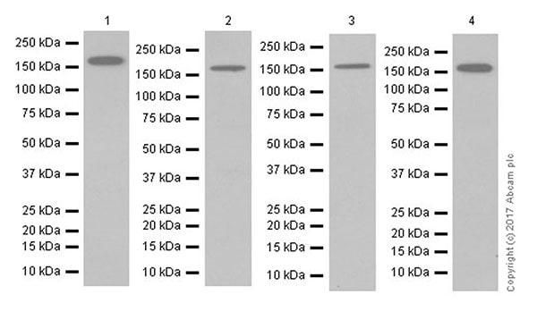 Western blot - Anti-AS160 antibody [EPR18418] (ab189890)
