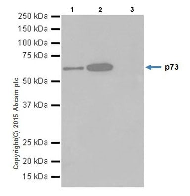 Immunoprecipitation - Anti-p73 antibody [EPR18409(T)(MIX)] (ab189896)