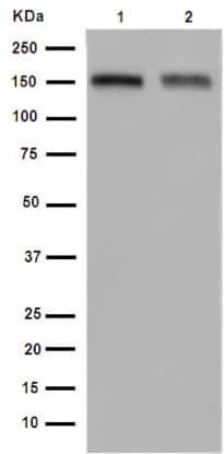 Western blot - Anti-CD163 antibody [EPR14643-36] - C-terminal (ab189915)