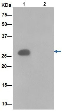 Immunoprecipitation - Anti-ANP32C/PP32R1 antibody [EPR13354-70R] (ab189921)
