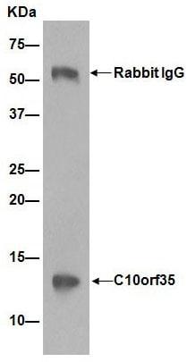 Immunoprecipitation - Anti-C10orf35 antibody [EP14950-82] (ab189923)