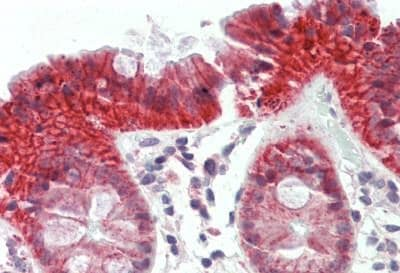 Immunohistochemistry (Formalin/PFA-fixed paraffin-embedded sections) - Anti-ATG2B antibody - N-terminal (ab189934)