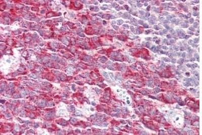 Immunohistochemistry (Formalin/PFA-fixed paraffin-embedded sections) - Anti-FMNL1 antibody - C-terminal (ab189940)