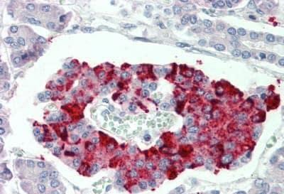 Immunohistochemistry (Formalin/PFA-fixed paraffin-embedded sections) - Anti-SCUBE3 antibody (ab189955)